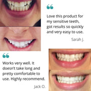 before and after teeth whitening kit reviews