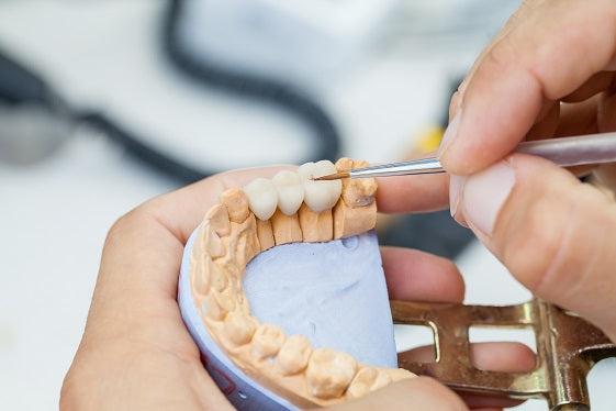 Understanding Dental Insurance - Part 3 (Major Services)
