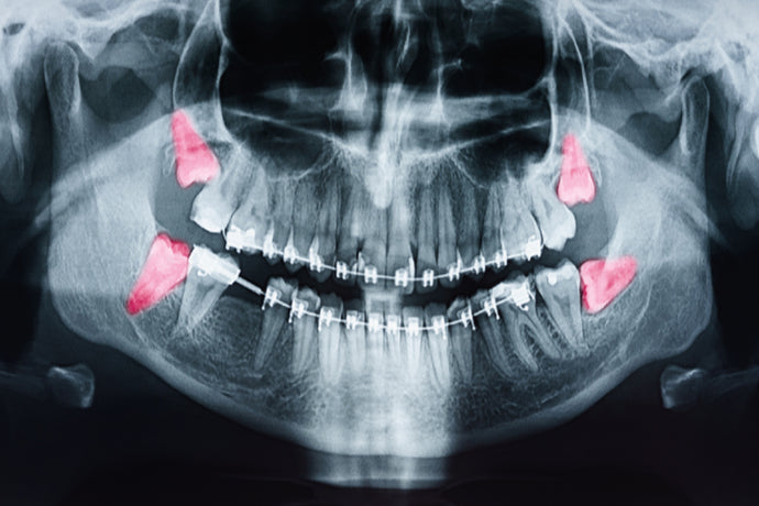 What to Expect With a Wisdom Tooth Extraction