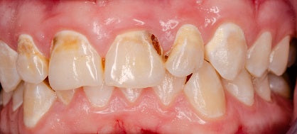 Dental Decay Cavity