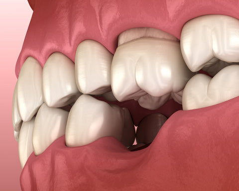 tooth extraction shifting