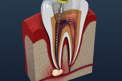 Root Canal Depiction