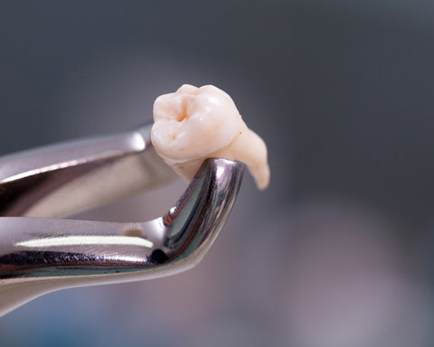 extraction bone graft oral surgery