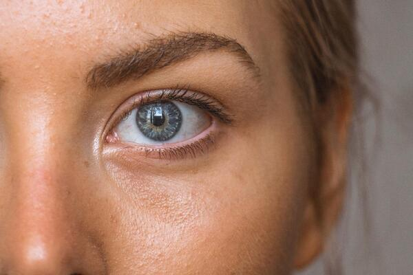 Sunken Eyes: What Are They and How Can You Get Rid of Them?