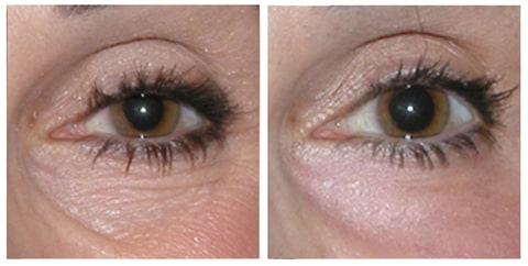 before and after under eye bags filler