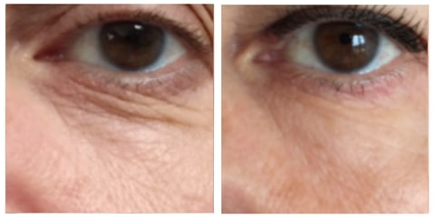 filler under eye before and after