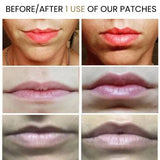 LIP FILLER | B-Selfie Volume
