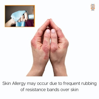 Skin allergy with resistance bands