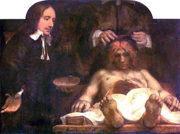Rembrandt Van Rijn Anatomy of Doctor Deyman - Canvas Art Print