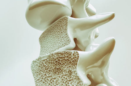 Can CBD Help With Osteoporosis?