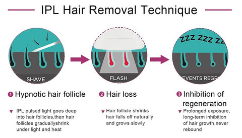 IPL hair removal techiques. 1. IPL goes deep down to the follicle and it shrinks gradually under light and heat. Next the hair follicles will fall off naturally and grow slowly. Prolonged exposure and long term inhibition of hair growth with IPL, thus never grows out again