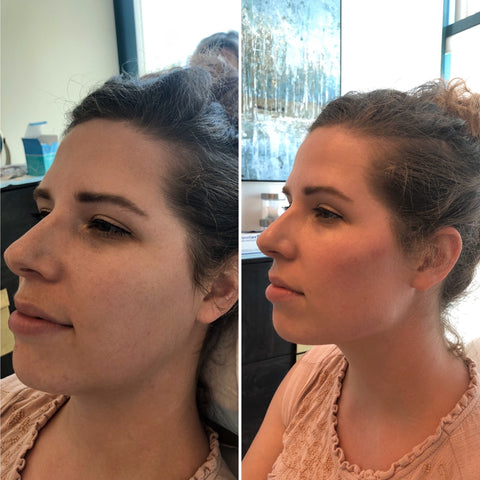 4 syringe technique used for beautification