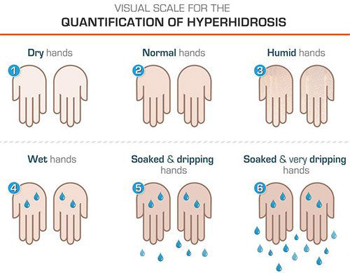 Hyperhidrosis DIagnosis and Treatment