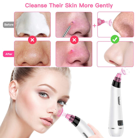 Blackhead Remover Vacuum Pore Cleaner