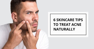 The 6 Proven Types of Natural Remedies That Will Treat Your Acne