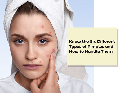 What are Your Spots? Know the Six Different Types of Pimples and How to Handle Them