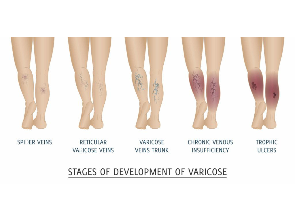 venous diseases
