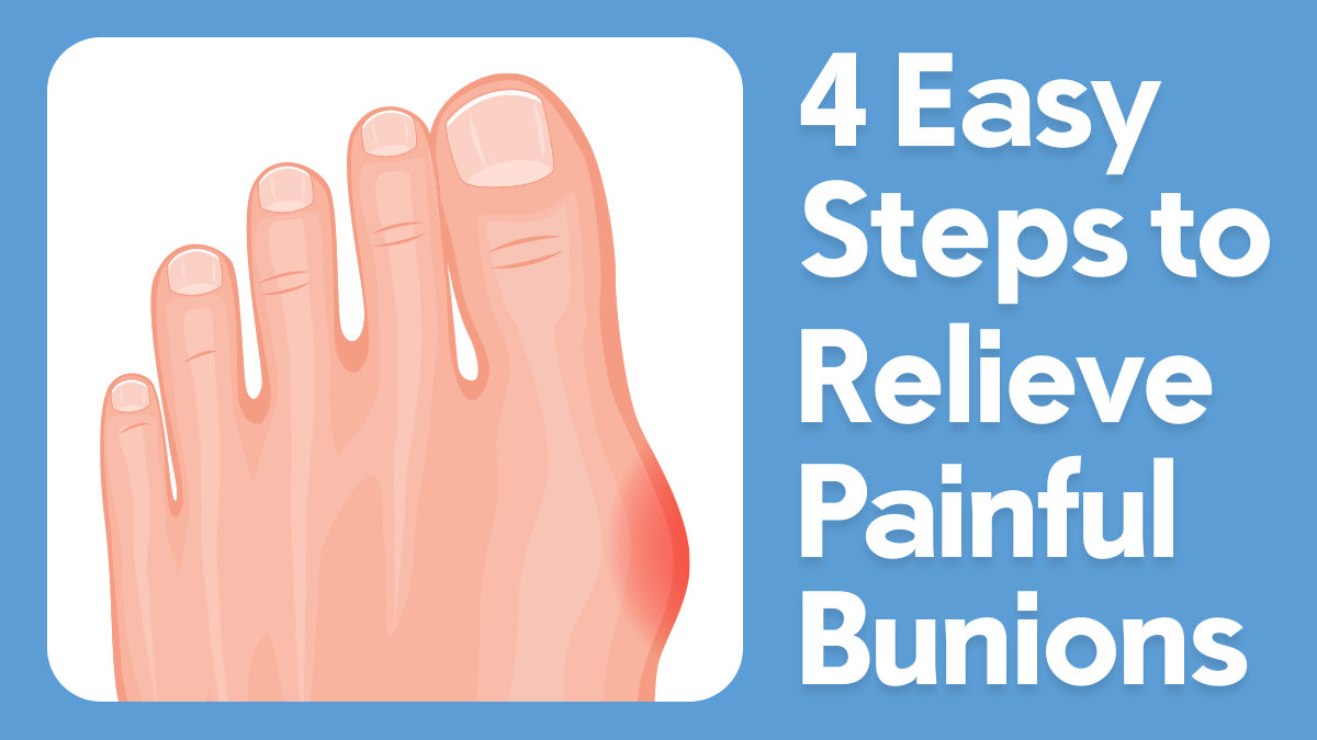 4 Easy Steps to Relieve Painful Bunions