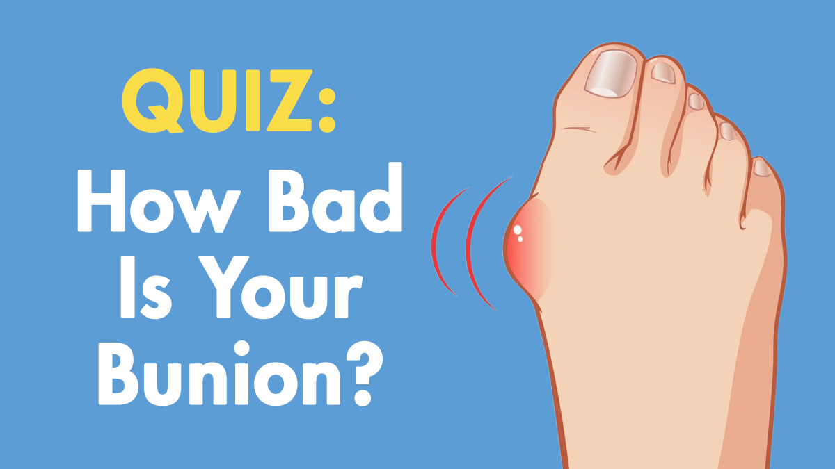 How Bad is Your Bunion? Quiz