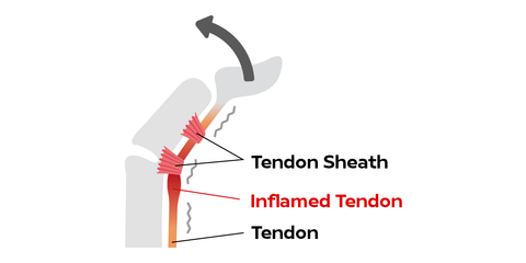 Inflamed tendon causing trigger finger