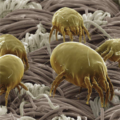 Microscopic View of Dust Mites in Bedding and Mattress