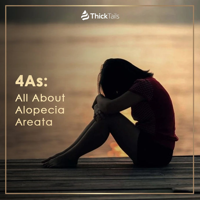 4As: All About Alopecia Areata