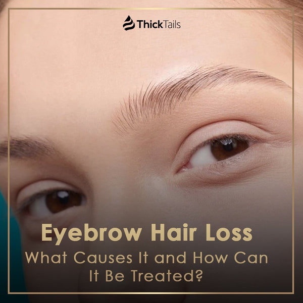 Eyebrow Hair Loss: What Causes It and How Can It Be Treated? | ThickTails
