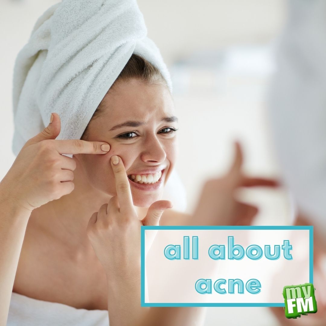 myFM: All About Acne
