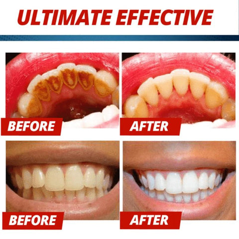 Intensive Stain Removal Whitening Toothpaste - LuxyGlow