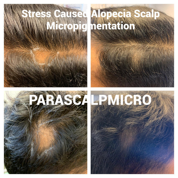 Stress causes Hair Loss / Alopecia Areata Fix by Scalp Micropigmentation Hair Tattoo