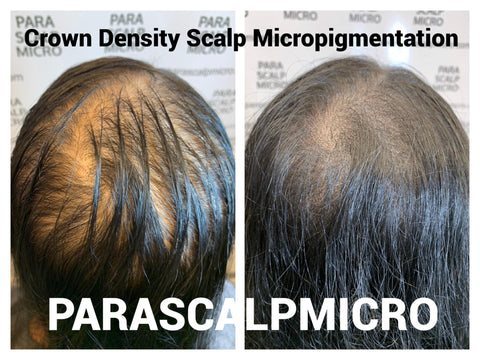 Female Alopecia Baldness Hair Loss Restoration Crown Density Scalp Micropigmentation Hair Tattoo New York City NJ PA CT LI