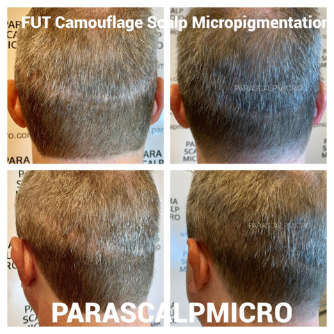 FUT Scar Camouflage Scalp Micropigmentation Hair Tattoo Transplant FUE Alopecia Hair Loss Solution New York City NJ CT PA