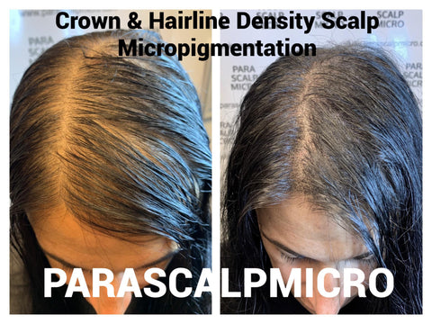 Female Baldness Hair Loss Restoration Solution Alopecia Crown Density Scalp Micropigmentation Tattoo New York City PA CT LI NJ