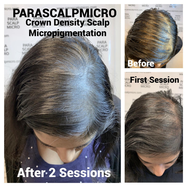 Female Hair Loss Alopecia Scalp Micropigmentation Hair Tattoo Crown Density NYC New York City NJ CT LI PA