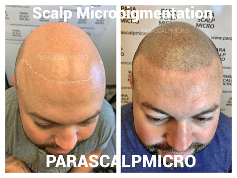 Male Pattern Baldness Best Scalp Micropigmentation alopecia hair tattoo New York City NJ PA CT