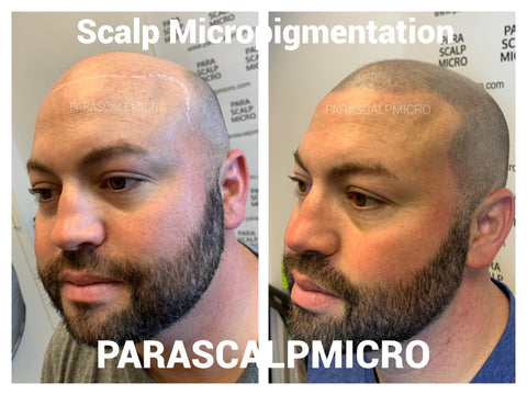 Male Pattern Baldness Hair Loss Restoration Solution Alopecia Scalp Micropigmentation Tattoo New York City NJ PA LI CT