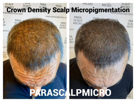 Crown Density Scalp Micropigmentation Hair Tattoo Alopecia Hair Loss Solution New York City NYC NJ PA CT Long island