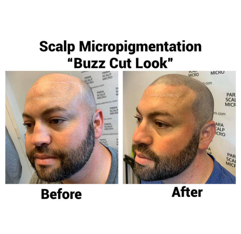 Scalp Micropigmentation Hair Tattoo Best Expert Certified Replacement Solution Alopecia New York City PA NJ CT Long Island Brooklyn Queens