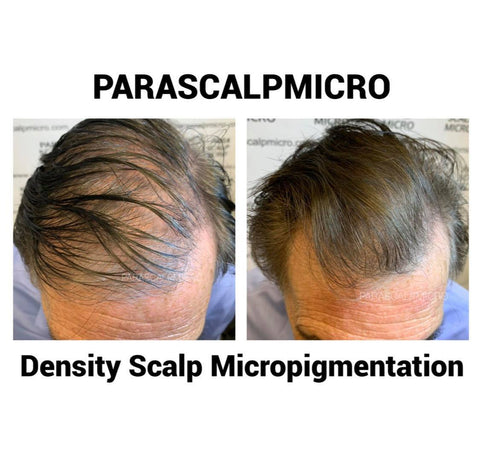 Hair Density Scalp Micropigmentation Tattoo Alopecia Hair Loss Solution Cover Up Repair New York City Tippok NYC Brooklyn Queens NJ PA Long Island Style Men