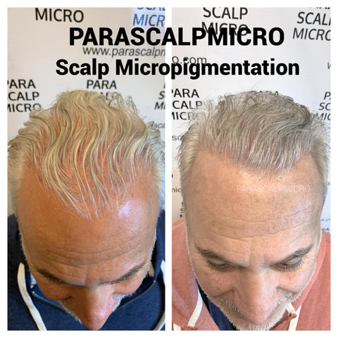 scalp micropigmentation tattoo alopecia hair loss transplant surgery FUE FUT density new york city NYC NJ PA CT Long Staten Island Queens Brooklyn, Manhattan