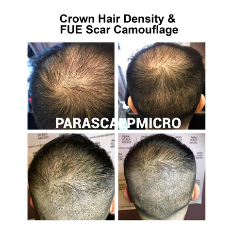 scalp micropigmentation hair tattoo loss restoration smp density alopecia new york city NYC NJ PA Connecticut long island brooklyn queens
