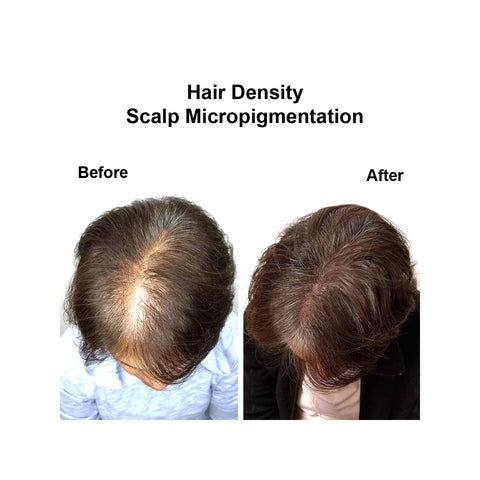 female hair loss crown density alopecia transplant bald baldness hair restoration hair solution clinic new york city nyc nj pa ct long island