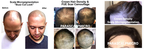 scalp micropigmentation hair transplant density FUT FUE scar camouflage alopecia hair loss new york city NYC PA NJ CT tips tricks