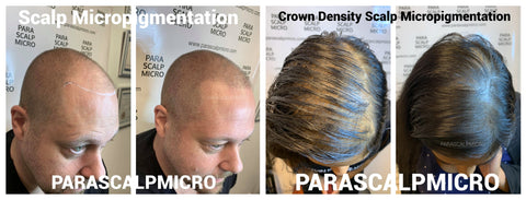 certification training Crown Density Scalp Micropigmentation trichopigmentation Hair Tattoo Alopecia Hair Loss Solution New York City NYC NJ PA CT Long staten island