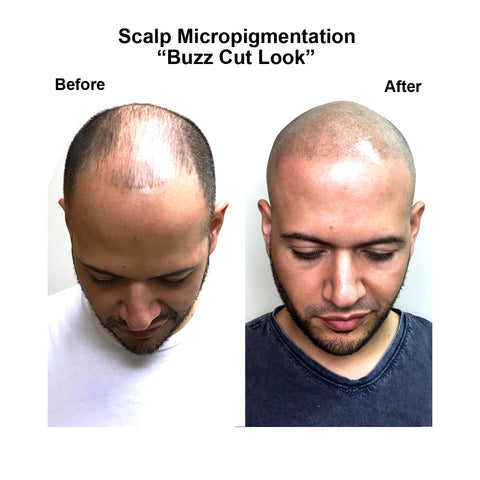 scalp micropigmentation hair tattoo loss restoration smp density alopecia new york city NYC NJ PA Connecticut long island brooklyn queens men