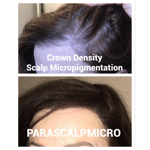 crown density female alopecia hair loss hair restoration best scalp micropigmentation transplant hair tattoo new york city new jersey NYC NJ PA CT Long island
