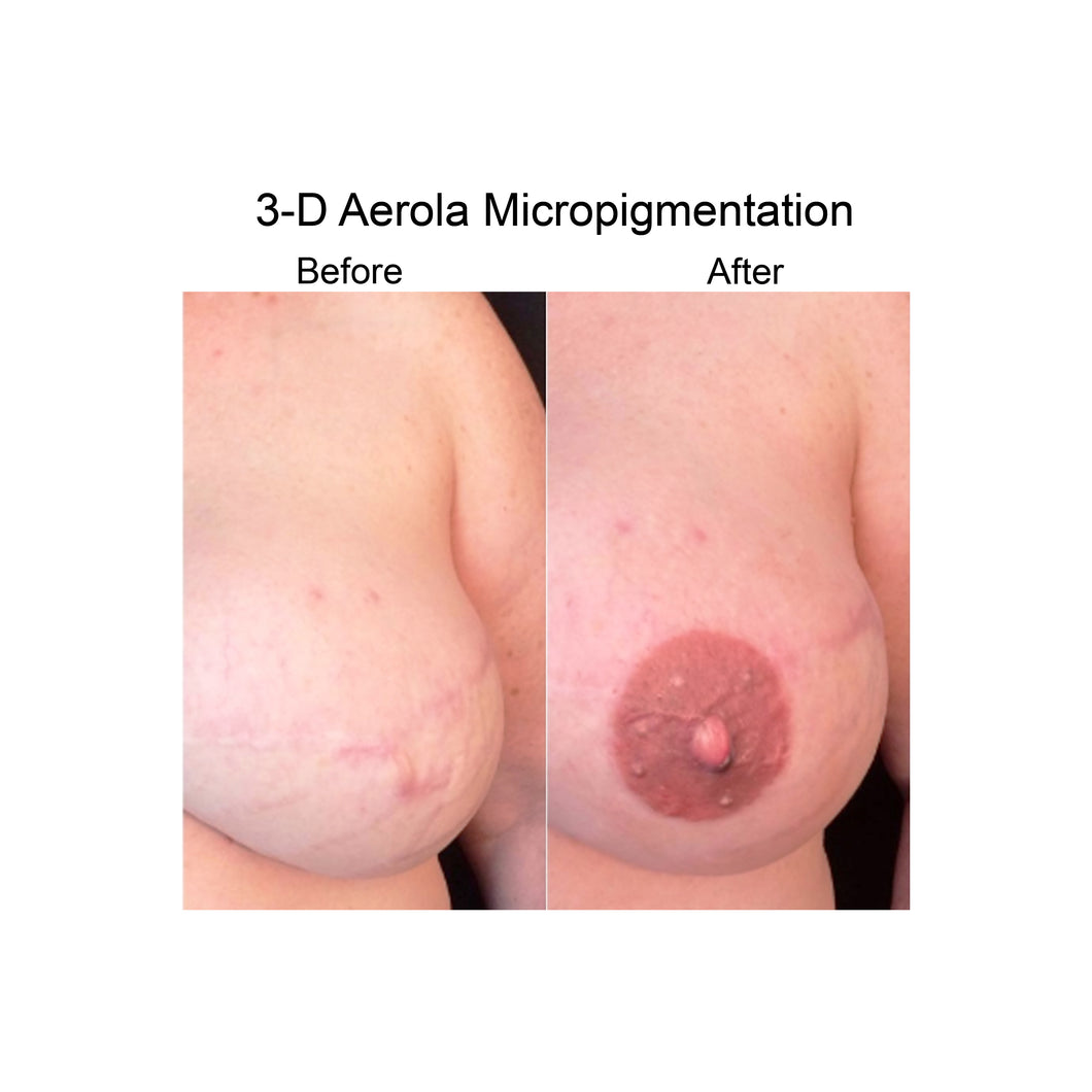 Two Areolas Micropigmentation - PARASCALPMICRO INSTITUTE
