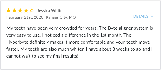 Review from Jessica White stating, The Byte aligner system is very easy to use.