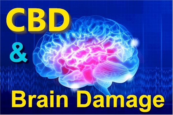 Does CBD Cause (or Help) with Brain Damage?