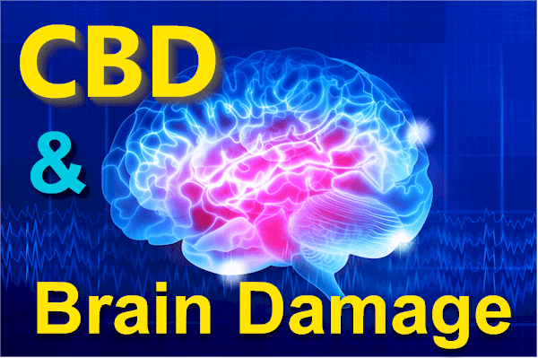 CBD and brain damage